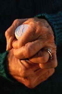 Fotografía - 40 remedios caseros para la artritis