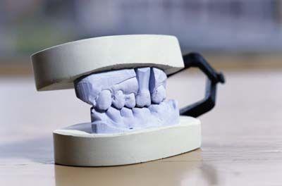 Fotografía - Descripción de la enfermedad dental