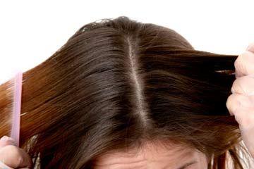 Fotografía - ¿Mi cuero cabelludo afecta a la forma en que mi cabello se ve?