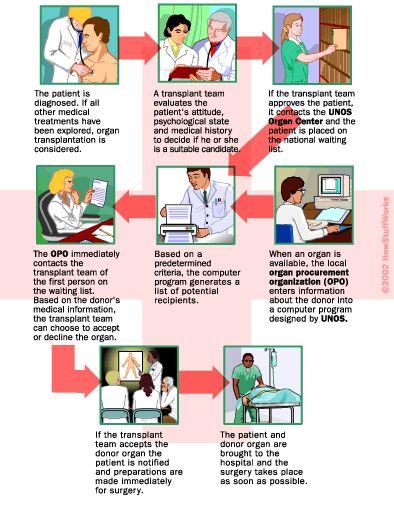Cómo Trasplantes de Órganos de Trabajo
