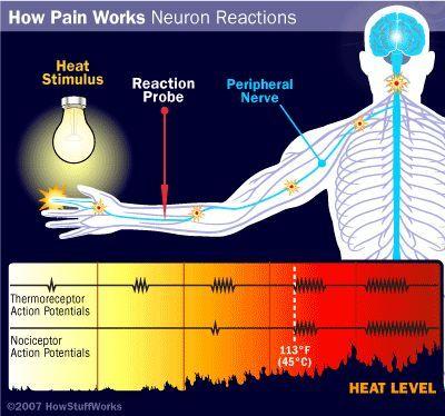 ilustración del dolor