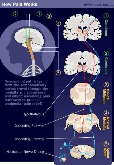 vías del dolor ilustración