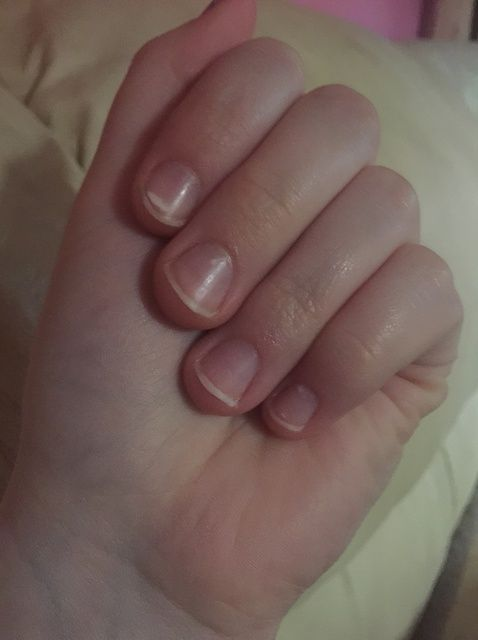 Cómo mantener a De Peeling / morderse las uñas