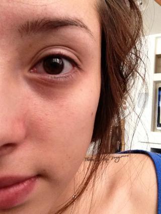 Estos son mis ojos después de eliminar por completo mi maquillaje de ojos.