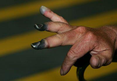 Dedos congelados.