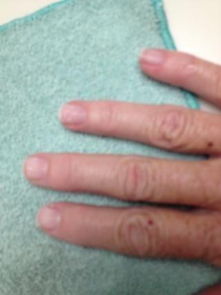 Después de que sus uñas se verá mal tan presentar y poner en una buena loción dijeron que dejar el esmalte de un mes, pero voy a tener que ocultar este lío con algún polaco