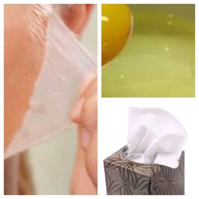 En primer lugar vamos's get that gunk out. Apply egg white to face, apply layer of tissue. Apply more egg white over paper. Allow to dry 10-15 min. Peel off gently, blackheads will stick to paper. Rinse and dry.