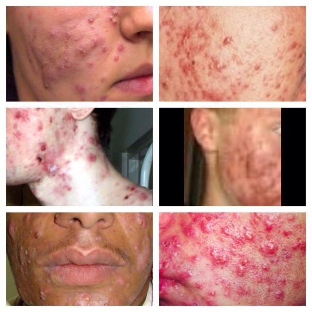 Y el último tipo se clasifica como quistes. Estos deben ser tratados por un profesional. Haga una cita con un dermatólogo. ¡Disfrutar!