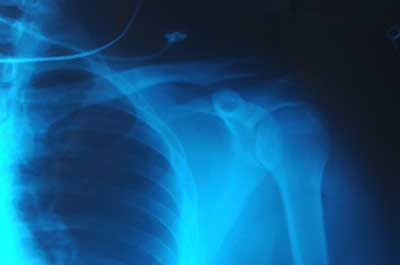 Fotografía - Cómo radiografías trabajo