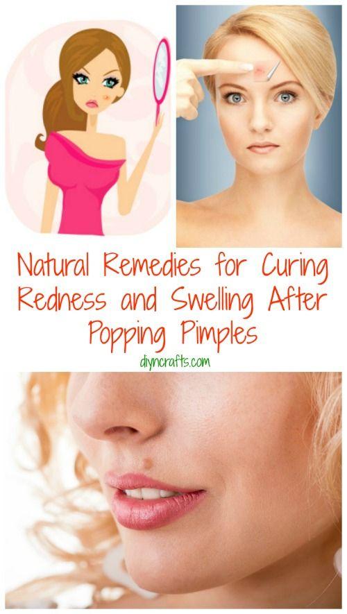 Remedios naturales para curar Enrojecimiento e hinchazón después de Popping espinillas